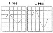 8-sinif-fen-bilimleri-ses-dalgasi-ve-sesin-ozellikleri-26