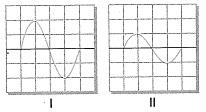 8-sinif-fen-bilimleri-ses-dalgasi-ve-sesin-ozellikleri-10