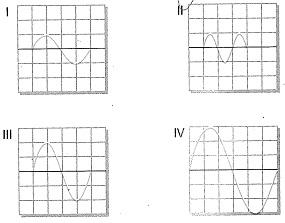 8-sinif-fen-bilimleri-ses-dalgasi-ve-sesin-ozellikleri-11