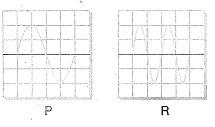 8-sinif-fen-bilimleri-ses-dalgasi-ve-sesin-ozellikleri-15