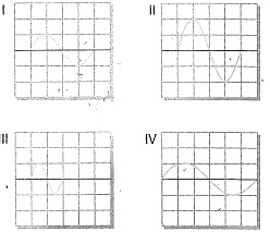 8-sinif-fen-bilimleri-ses-dalgasi-ve-sesin-ozellikleri-30