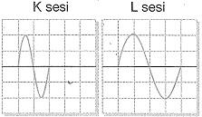 8-sinif-fen-bilimleri-ses-dalgasi-ve-sesin-ozellikleri-34